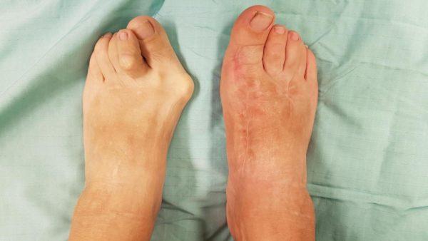 haluksy - efekt przed i po operacji