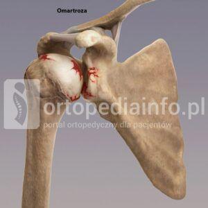 endoproteza anatomiczna stawu ramiennego - omartroza