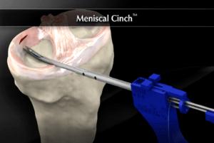 Szycie łąkotki - artroskopia kolana, animacja 3D