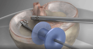 usunięcie łąkotki meniscektomia - artroskopia kolana, animacja 3D