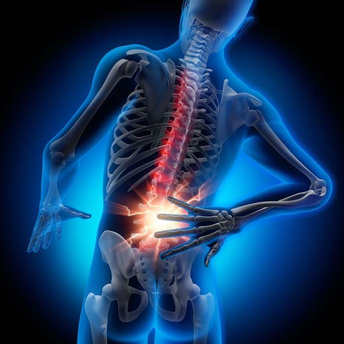 Znalezione obrazy dla zapytania ból kręgosłupa