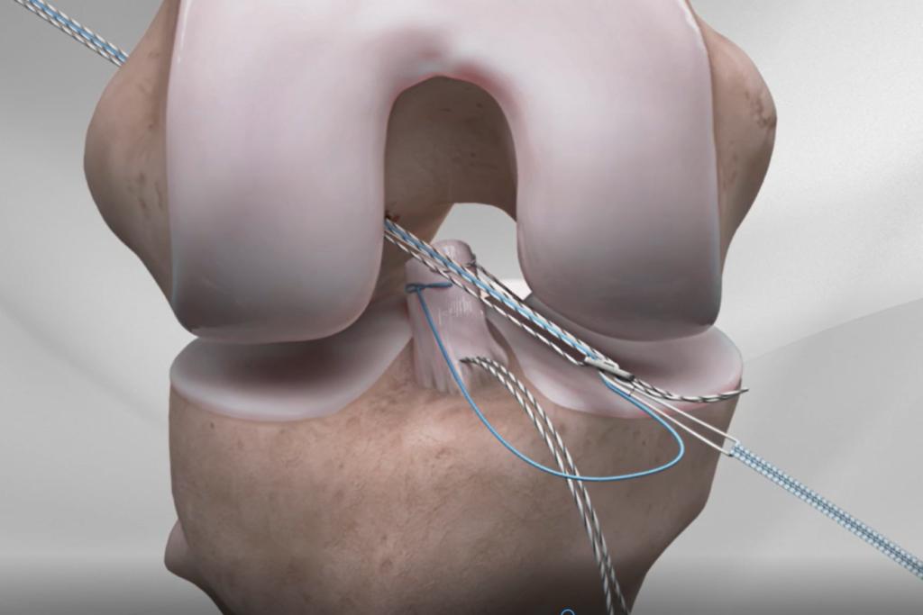 Naprawa więzadła krzyżowego przedniego ACL metodą internal bracing