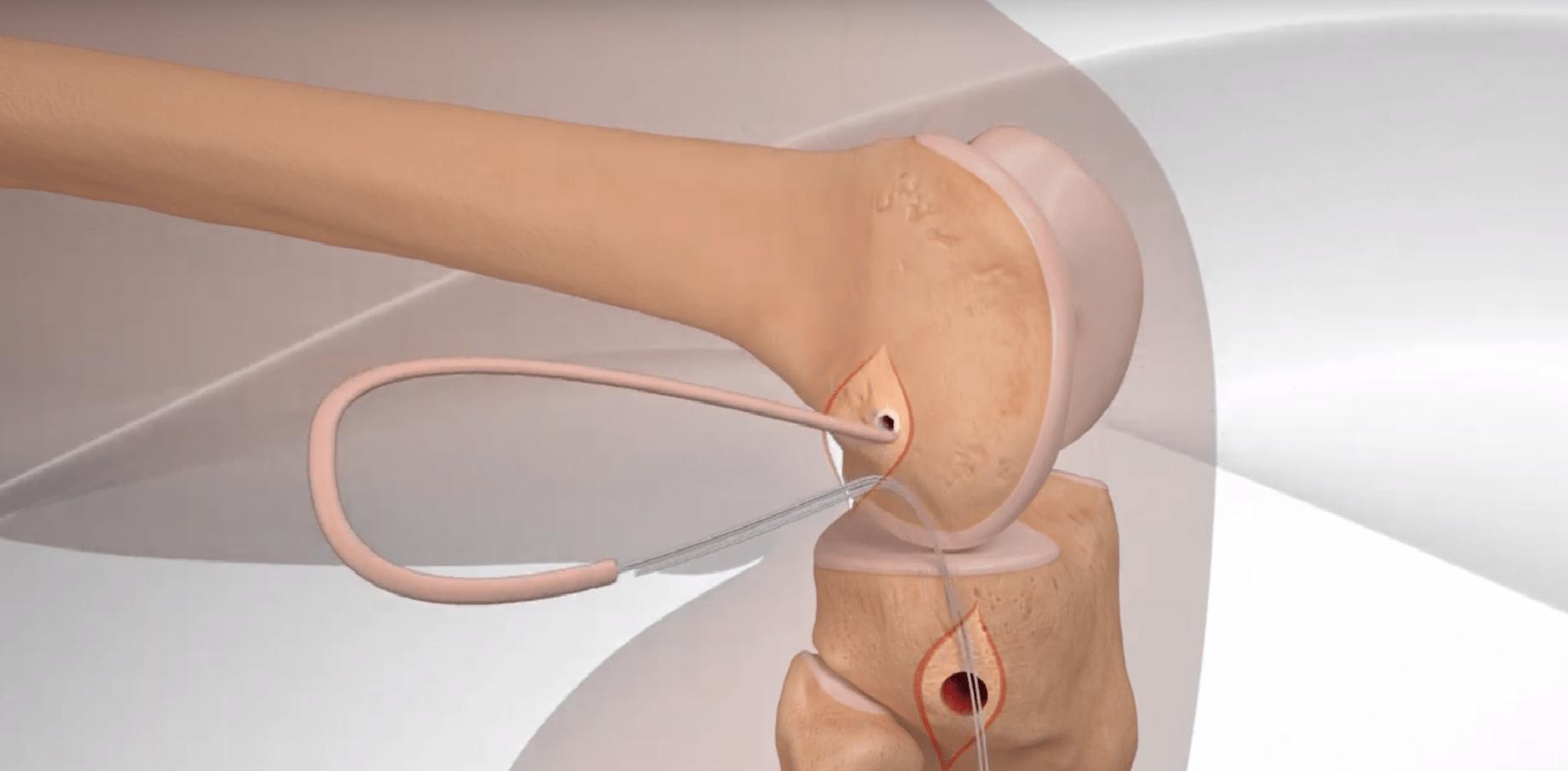 rekonstrukcja więzadła przednio-bocznego ALL