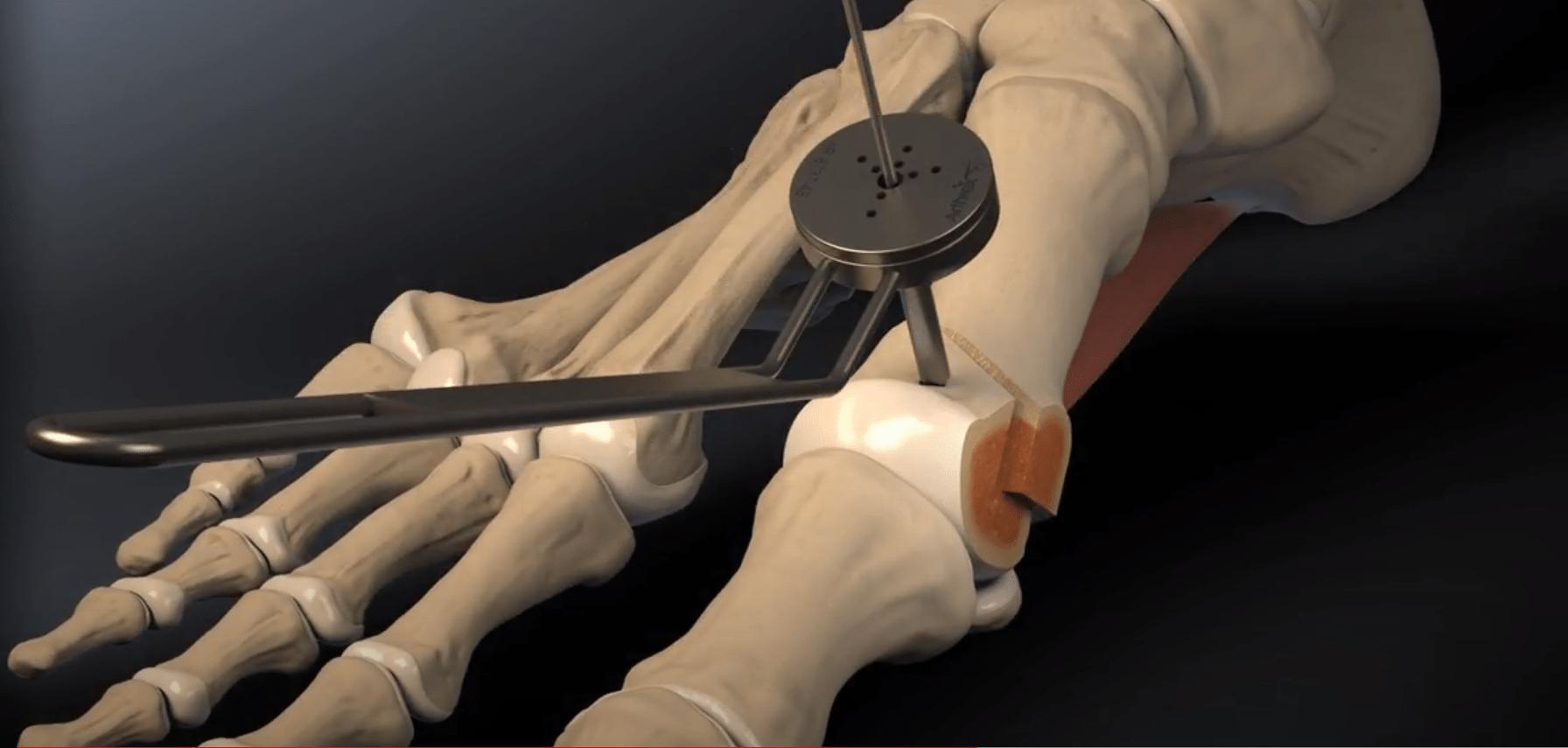 operacja haluksów metodą Chevrona
