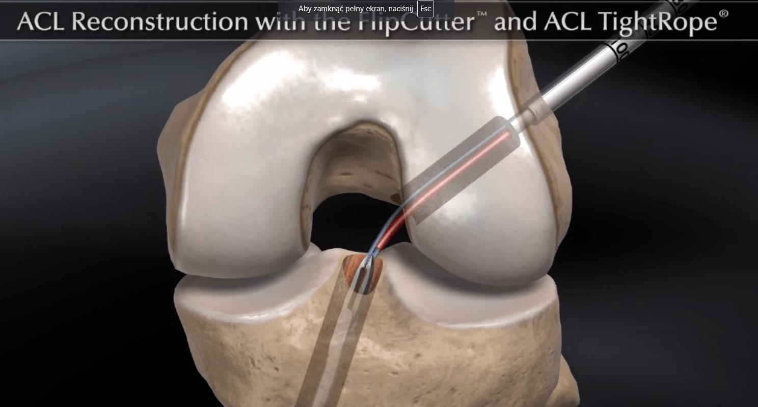 rekonstrukcja więzadła ACL z użyciem przeszczepu